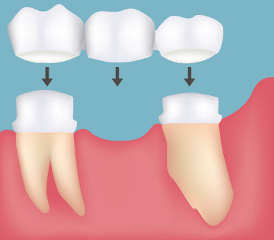 Dental Bridges, Tooth Replacement in Pittsburgh, PA - South Vue Dentistry