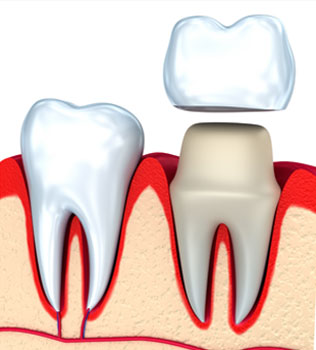 Dental Crowns, Tooth Caps in Pittsburgh, PA - South Vue Dentistry