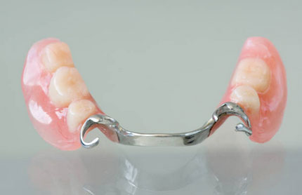 Partial Dentures in Pittsburgh, PA - South Vue Dentistry