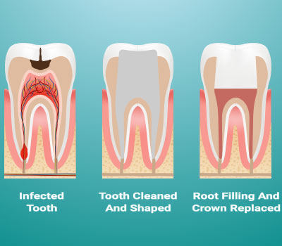 Root Canal Therapy in Pittsburgh, PA - South Vue Dentistry