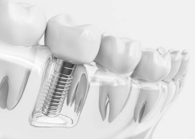 Dental Implants in Pittsburgh, PA - South Vue Dentistry